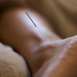 acupunctuur-voet_klein